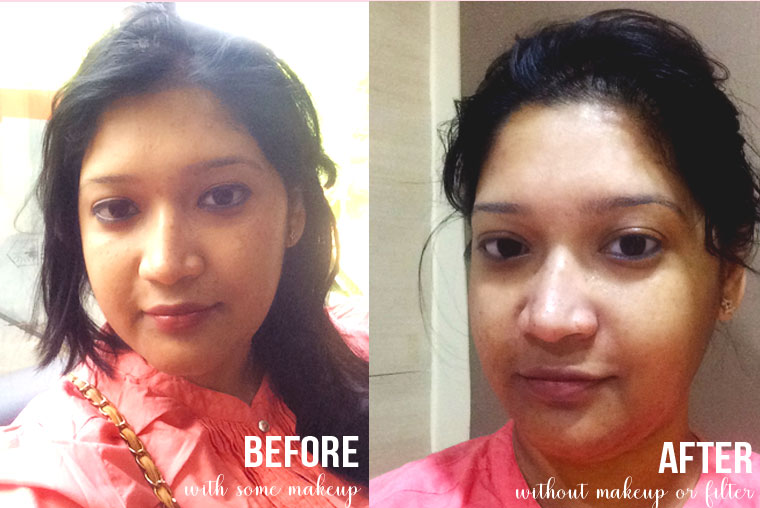 before-and-after-photos-facial-vlcc-bellewave-hydrowave