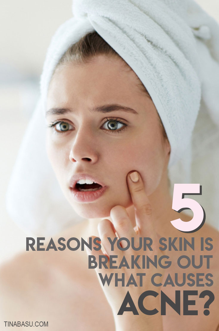 What causes acne - reasons why you are breaking out